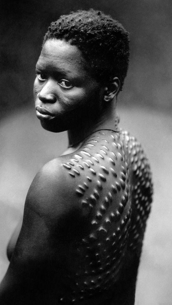 Jovem africana com cicatrizes no corpo