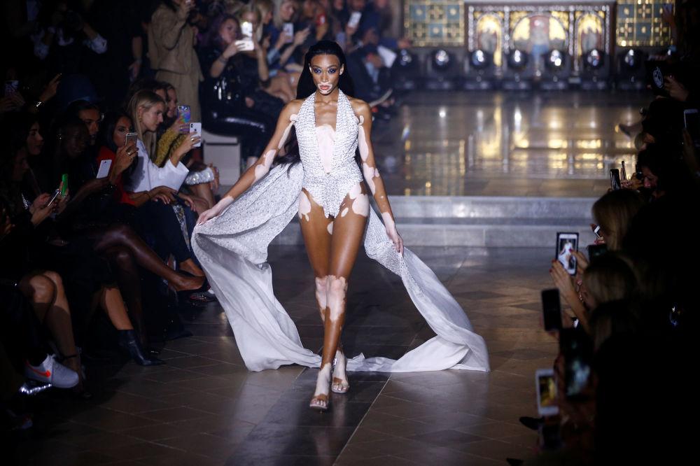 Modelo com doença cutânea vitiligo apresenta uma coleção de roupa do designer Julien Macdonald durante a Semana de Moda Feminina em Londres