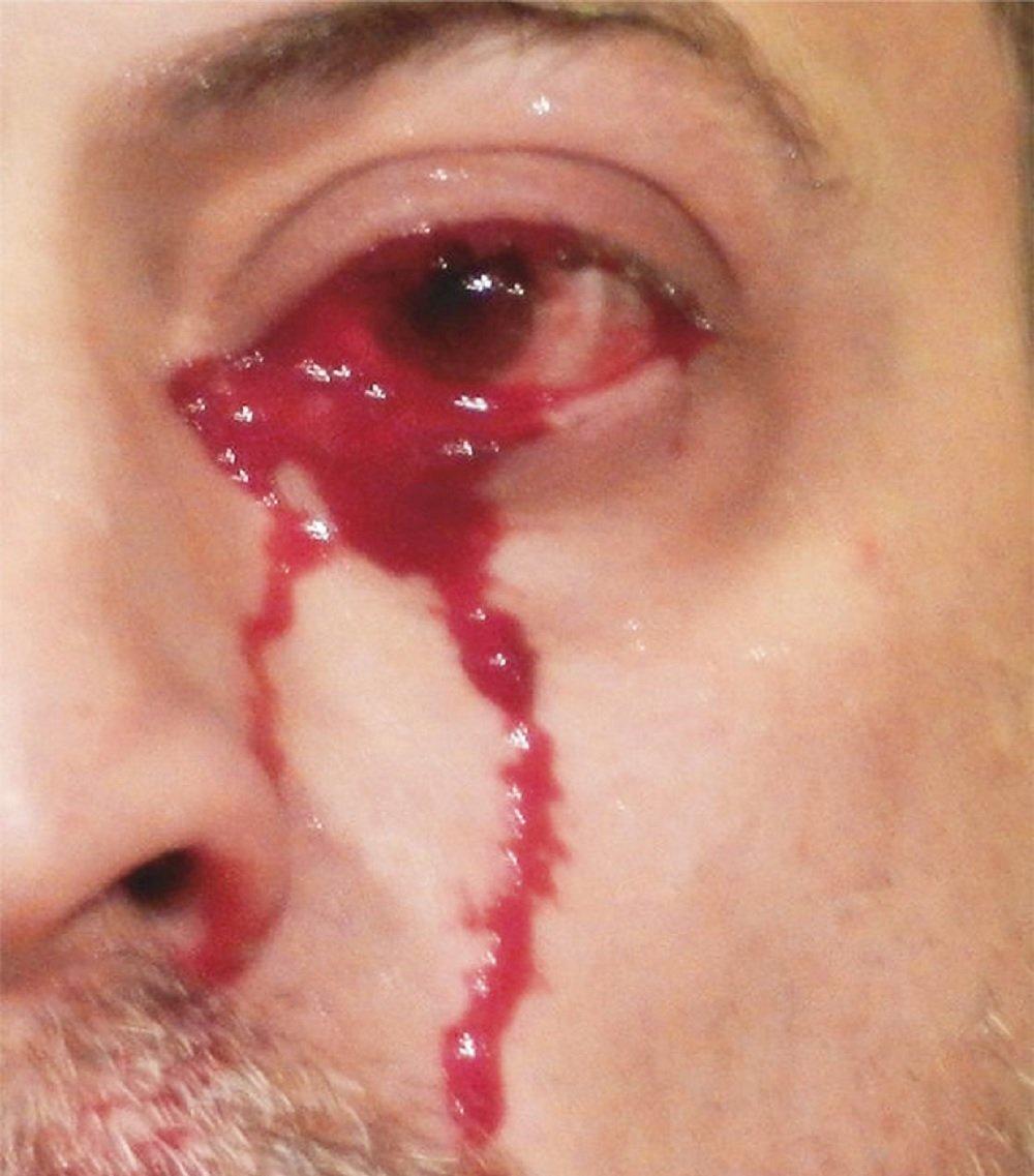 Homem com o olho sangrando