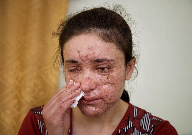 Menina yazidi de 18 anos de idade, Jesidin Lamiya Adschi Baschar, que  foi espancada e estuprada muitas vezes no seu cativeiro do Daesh