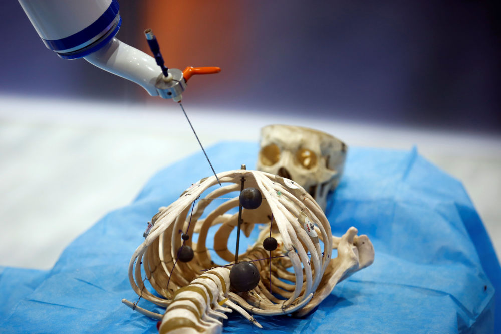 O robô criado pela corporação Siasun Robot and Automation mostra sua capacidade de realizar operação médica em esqueleto humano de mentira