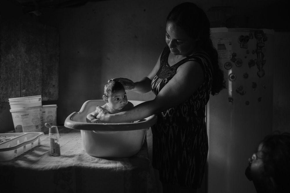 Imagem da série Vítimas do Zika, do fotógrafo Lalo de Almeida, mostra a brasileira Adriana Cordeiro Soares dando banho ao seu filho João Miguel, com 3 meses de idade, nascido com microcefalia causada pelo vírus do Zika