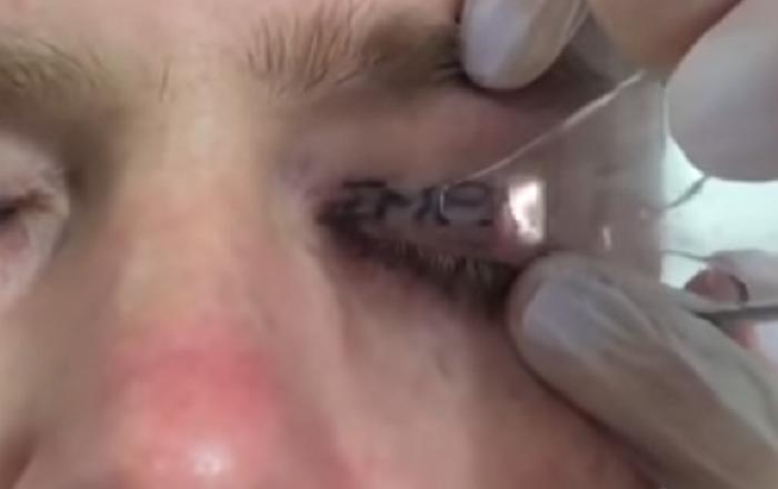 Homem faz tatuagem de pálpebra após festejar por 3 dias sem parar