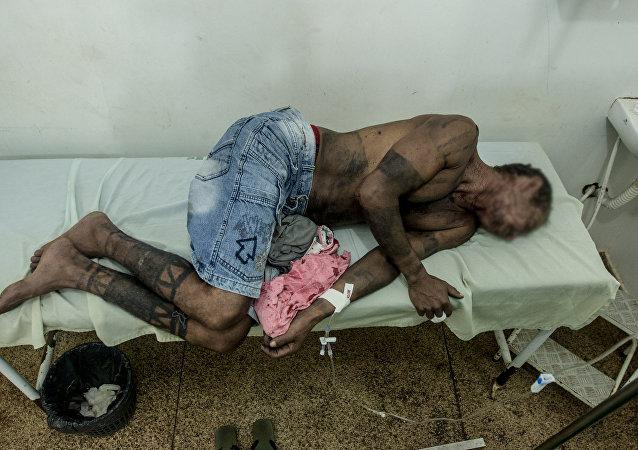 Índio Gamela atacado no Maranhão