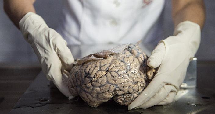 Doutora Diana Rivas exibe cérebro humano no Museu de Neuropatologia em Lima, Peru, 16 de dezembro de 2016