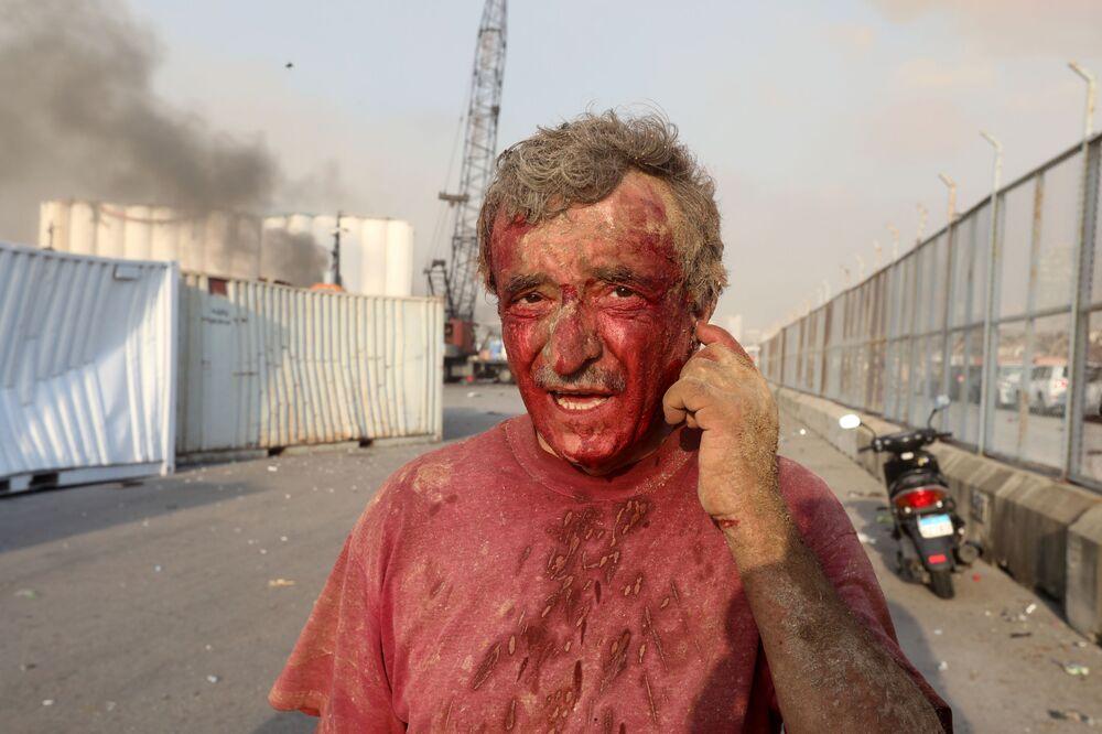 Homem ferido é visto logo depois da explosão que atingiu a região portuária de Beirute