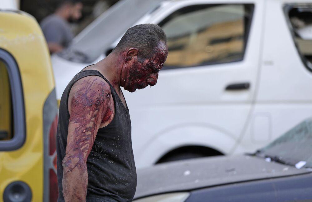 Homem ferido caminha no porto próximo ao epicentro da explosão na capital libanesa de Beirute