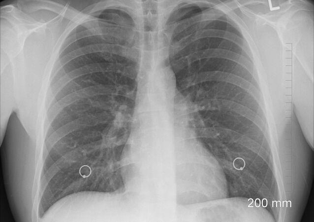 Imagem de pulmões