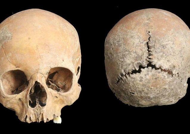 Crânio de jovem que sofreu mutilação facial