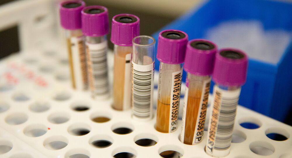 Amostras de plasma convalescente em frascos antes de testes de anticorpos para COVID-19 no Laboratório Bloodworks do Noroeste, durante a pandemia do coronavírus em Renton, Washington, EUA, 9 de setembro de 2020