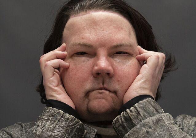 Joe DiMeo posa para fotografia mostrando seu novo rosto