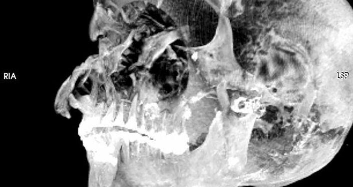 Imagem 3D do crânio do faraó Seqenenre Taa II