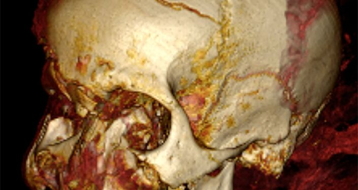 Tomografia computadorizada da cabeça da múmia do faraó Seqenenre Taa II