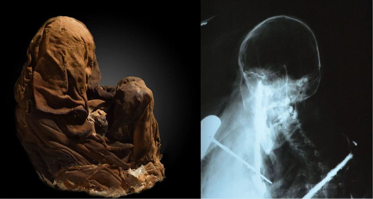 Uma múmia encontrado no vulcão de Ampato, no Peru, e sua rediografia