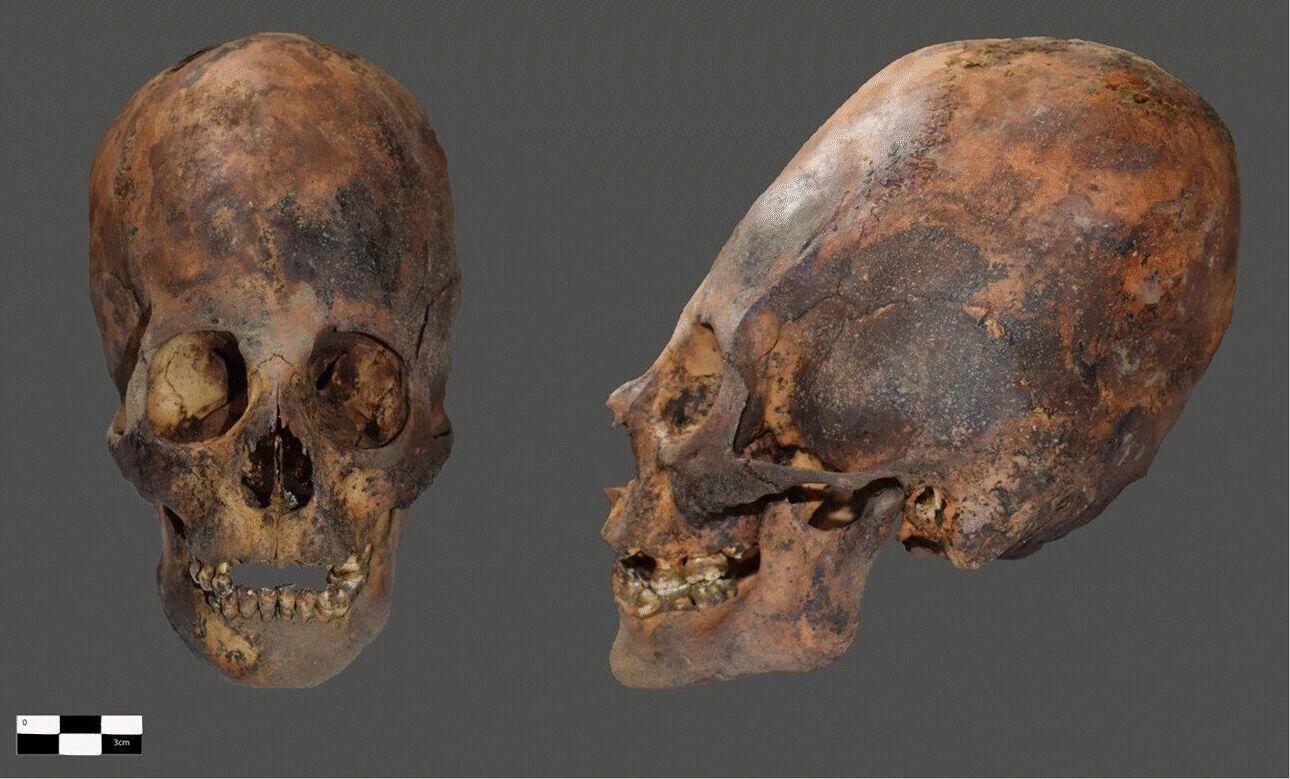 O crânio de uma pessoa encontrada no topo do vulcão Pichu-Pichu, no Peru