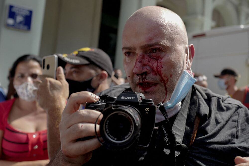 O fotógrafo da AP, o espanhol Ramon Espinosa, é visto com ferimentos no rosto enquanto cobria uma manifestação contra o presidente cubano Miguel Diaz-Canel, em Havana, no domingo (11). Milhares de cidadãos que participaram dos raros protestos contra o governo comunista, marchavam pela cidade gritando Abaixo a ditadura e Queremos a liberdade