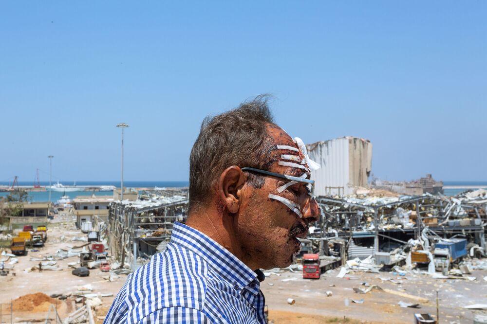 Foto Blast Scars (Cicatrizes da Explosão, na tradução) tirada pelo fotógrafo libanês Marc Abou Jaoude, terceiro lugar na categoria Humanidade. Foto mostra um motorista de caminhão ferido durante explosão do porto de Beirute em agosto de 2020