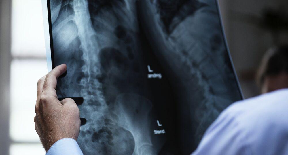 Raio X nas mãos do médico (imagem referencial)