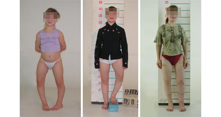 Paciente de 14 anos, com deformações congênitas das extremidades inferiores e altura de 135 cm, que realizou uma correção das pernas com alongamento de 7 cm. A altura após o tratamento é de 143 cm.