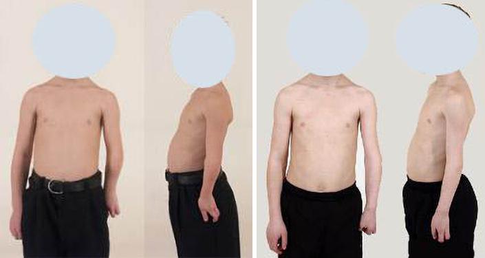 Paciente de 16 anos com displasia pós-traumática do cotovelo. Alongamento de oito centímetros.