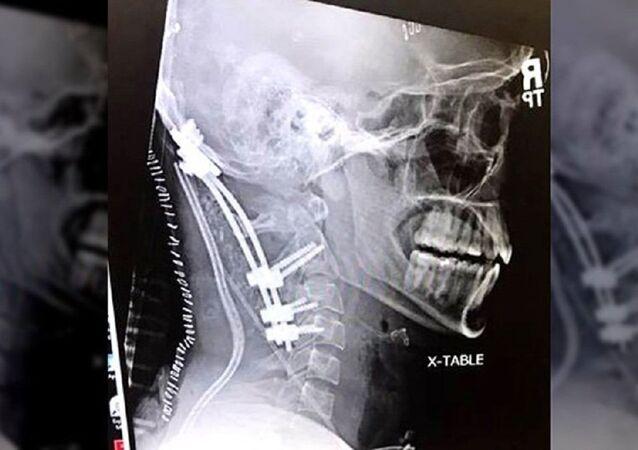 Raio X do crânio (imagem referencial)