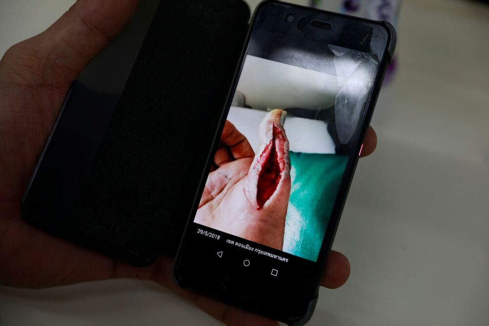 Bombeiro mostra foto de seu dedo depois de ser picado por cobra-real em Bangkok