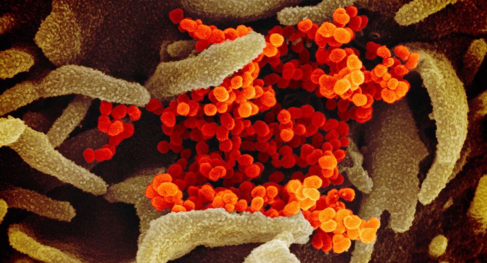 Imagem de microscópio eletrônico de varredura mostra SARS-CoV-2 na cor laranja avermelhando