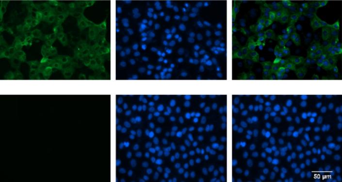 Comparação do plasma de um infectado com SARS-CoV-2 com o de uma pessoa saudável