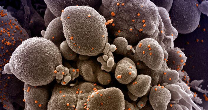 Micrografia eletrônica digitalmente colorida de uma célula apoptótica (tan) infectada com partículas do vírus SARS-CoV-2 (laranja)