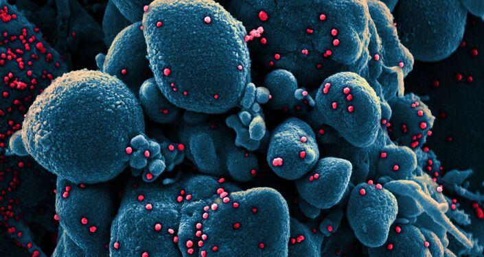 Micrografia eletrônica digitalmente colorida de uma célula apoptótica (azul) infectada com partículas do vírus SARS-CoV-2 (vermelho)
