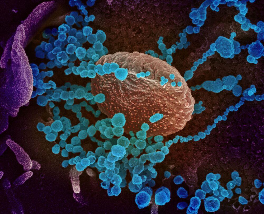 Imagem realizada por um microscópio demonstra vírus responsável pela COVID-19