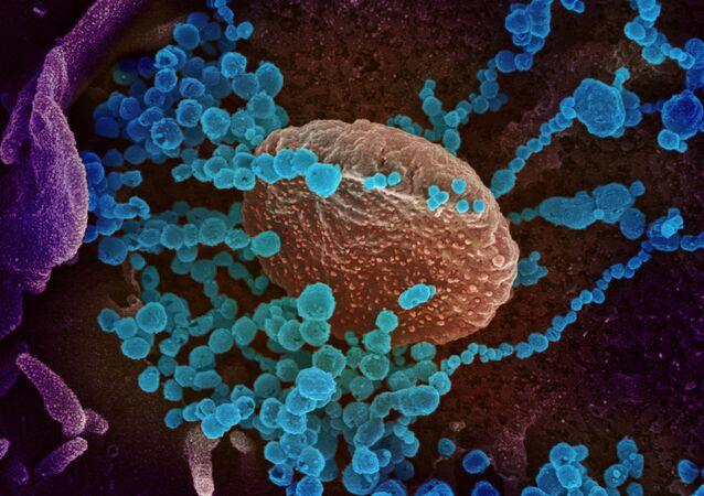 Imagem rastreada de microscópio eletrônico mostra o SARS-CoV-2 (objetos redondos azuis), também conhecido como novo coronavírus, emergindo da superfície de células cultivadas no laboratório que foram isoladas de um paciente nos Estados Unidos