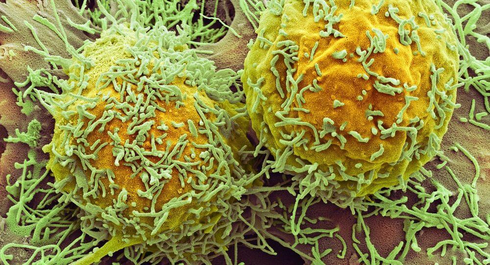 Células de câncer no fígado