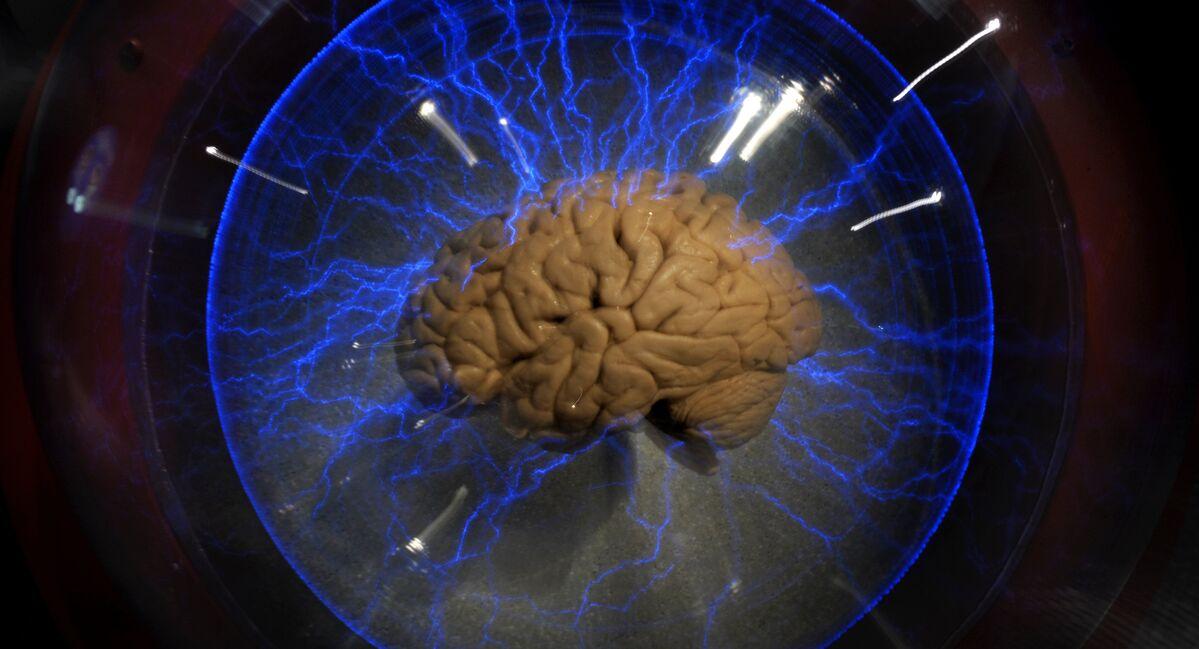 Cérebro feminino funciona melhor que masculino durante excitação sexual -  Sputnik Brasil