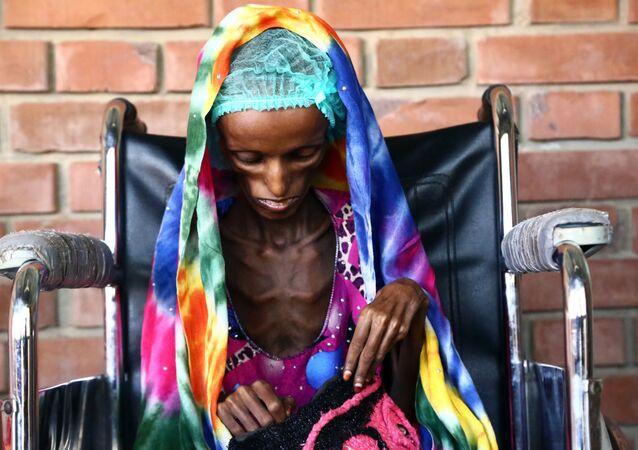 Saeeda Ahmed, de 18 anos de idade, a imagem dramática da fome no hospital da cidade portuária de Hodeidah, Iêmen. Segundo a UNICEF, no Iêmen três milhões de pessoas precisam de alimentos e meio milhão de crianças sofrem de desnutrição